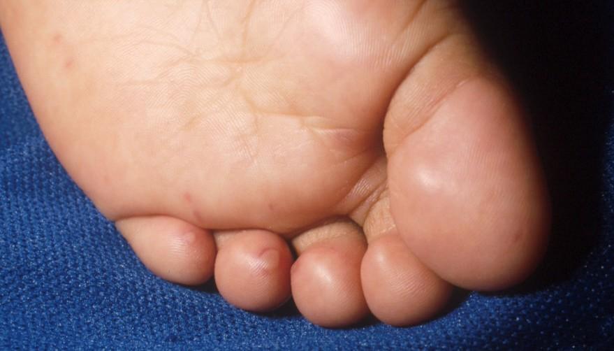 Manos, pies y boca - Farmacia Infantes